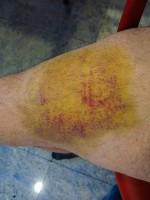 One of Rick's bruises